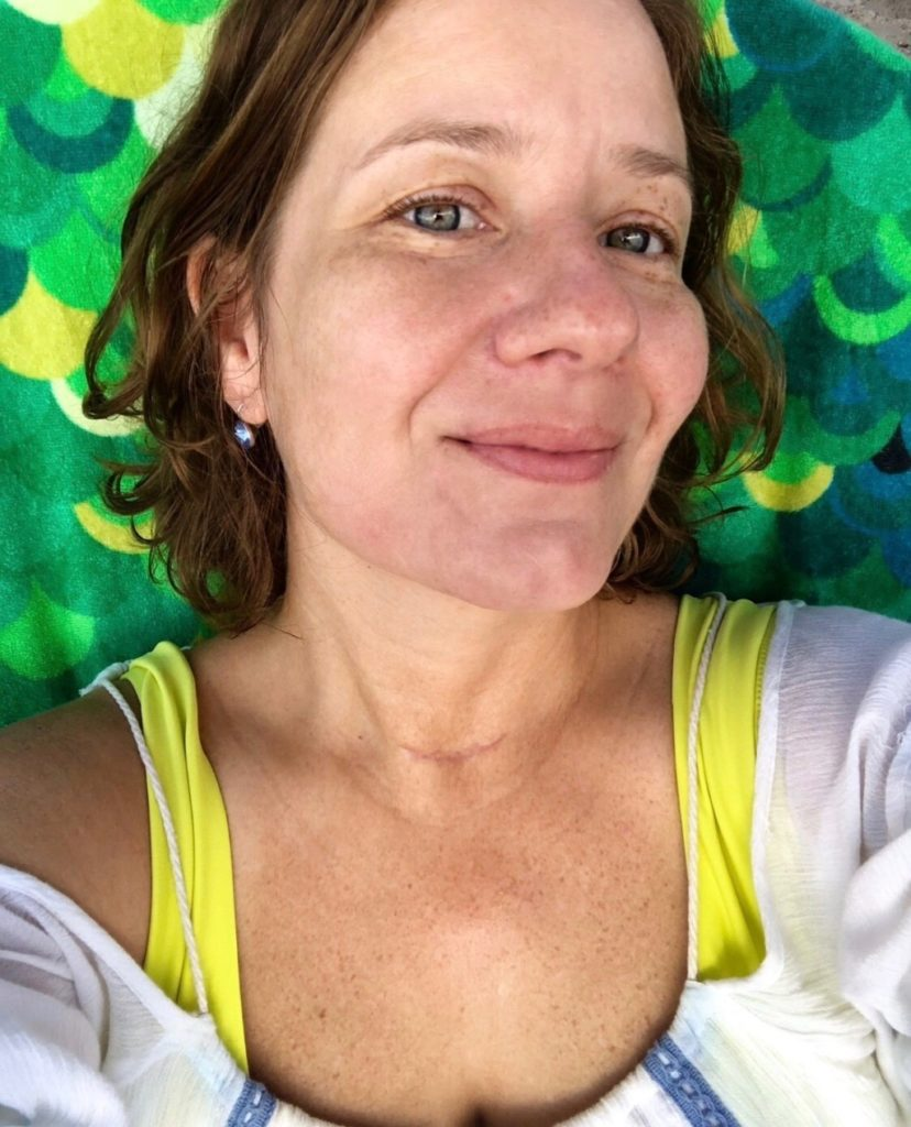 Thyroid Removed Things I didn't Know Miami Moms Blog