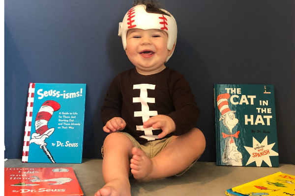 Jessica's son with a cranial helmet (Plagiocephaly and a Cranial Helmet: It's Not As Scary As It Looks Jessica Socarras Contributor Miami Mom Collective)